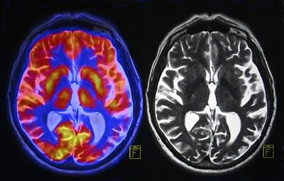 ¿Cómo puedo generar más dopamina?